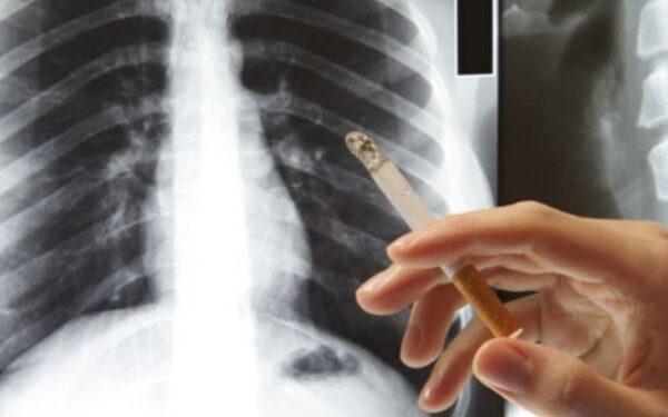 Gói tầm soát ung thư phổi là gì