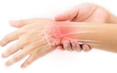 Hội chứng ống cổ tay – những kiến nhất định phải biết