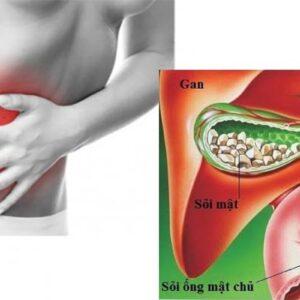 Mổ nội soi lấy sỏi ống mật chủ – bước tiến mới trong điều trị sỏi mật