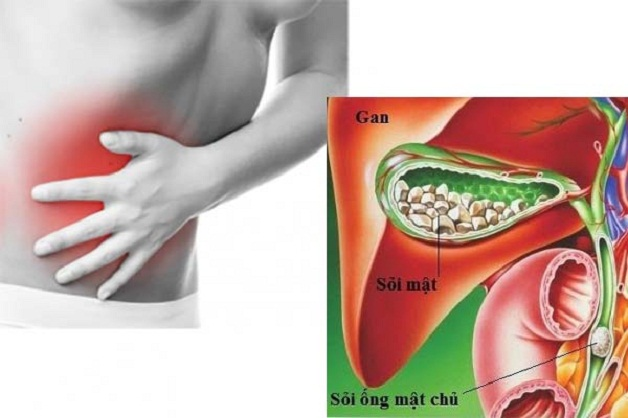 Mổ nội soi lấy sỏi ống mật chủ là bước tiến mới trong điều trị sỏi mật