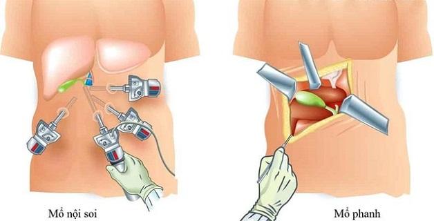 Phương pháp mổ nội soi lấy sỏi túi mật có nhiều ưu điểm vượt trội so với phương pháp mổ mở truyền thống
