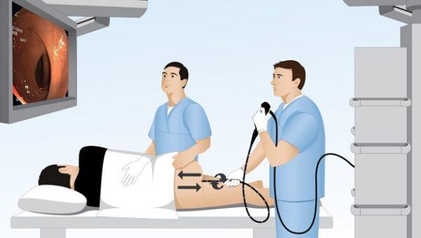 Nội soi đại trực tràng là phương pháp thăm dò chức năng đường tiêu hóa dưới, nhằm quan sát, phát hiện và đánh giá các tổn thương (nếu có) ở niêm mạc đại trực tràng.
