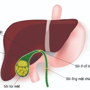 Nội soi lấy sỏi mật – giải pháp hiệu quả trong điều trị sỏi túi mật