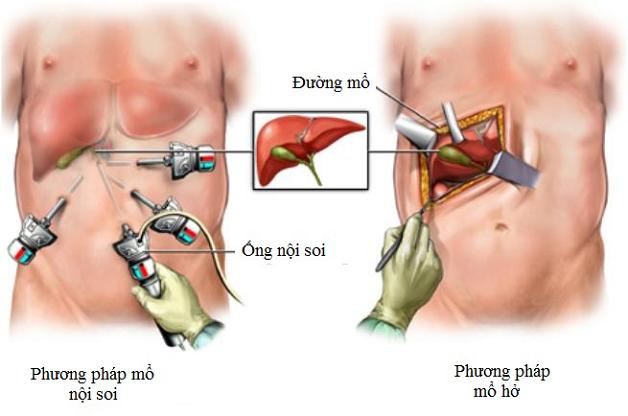 Nội soi lấy sỏi mật là phương pháp điều trị sỏi mật an toàn và hiệu quả