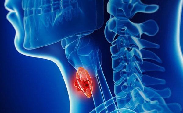 tầm soát ung thư vòm họng như thế nào