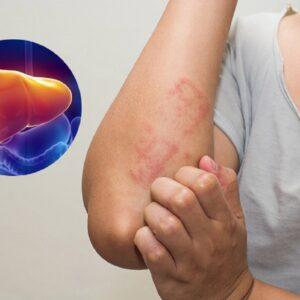 Cần làm gì để khắc phục tình trạng rối loạn chức năng gan ở người bệnh