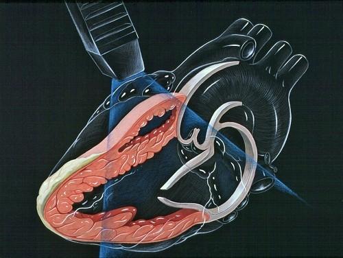 siêu âm tim