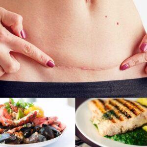 Giải đáp thắc mắc: Phụ nữ sau khi sinh mổ bao lâu được ăn hải sản?