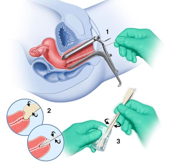 Xét nghiệm tầm soát ung thư cổ tử cung