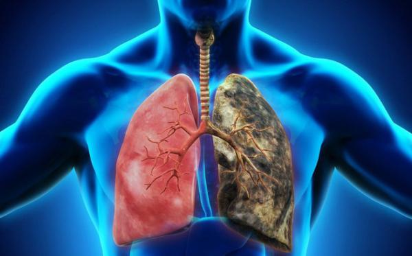 Phổi bình thường và phổi mắc ung thư qua tầm soát ung thư cho nam