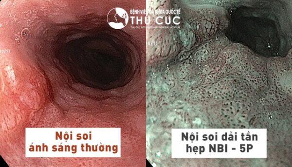 Tầm soát ung thư dạ dày ở đâu tại Hà Nội