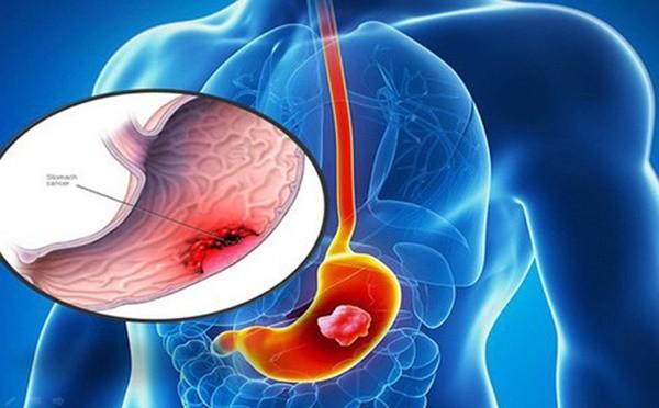 Tầm soát ung thư dạ dày ở đâu