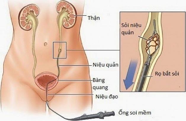 Tán sỏi ngược dòng bằng laser giúp làm sạch sỏi nhanh, không có vết mổ, không gây đau đớn