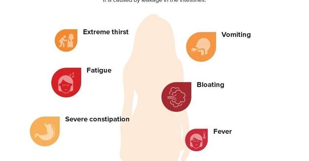 Triệu chứng bệnh viêm phúc mạc