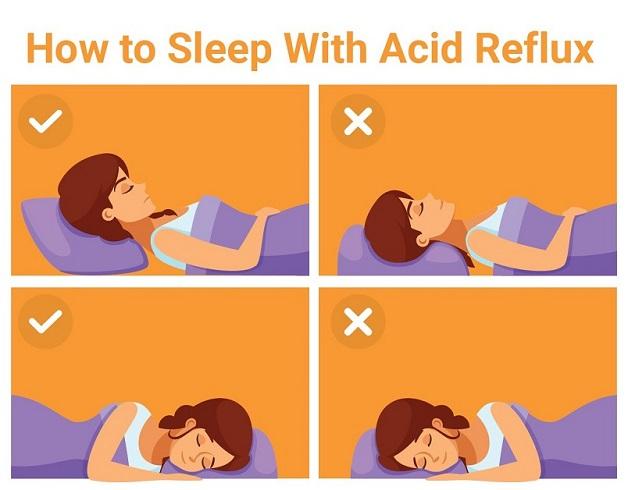 ĐIều chỉnh tư thế nằm để hạn chế tình trạng trào ngược của acid dạ dày lên thực quản khi ngủ.