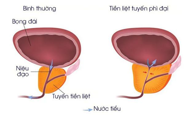 Khi bước sang độ tuổi 40, tuyến tiền liệt bắt đầu phát triển bất thường gây u xơ phì đại tuyến tiền liệt
