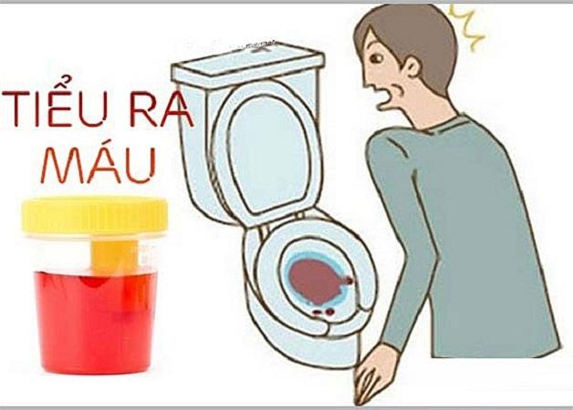Nguyên nhân chủ yếu gây viêm đường tiết niệu tiểu ra máu là vi khuẩn E.coli