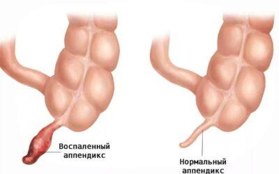 Viêm ruột thừa – dấu hiệu nhận biết kịp thời và cách xử lý