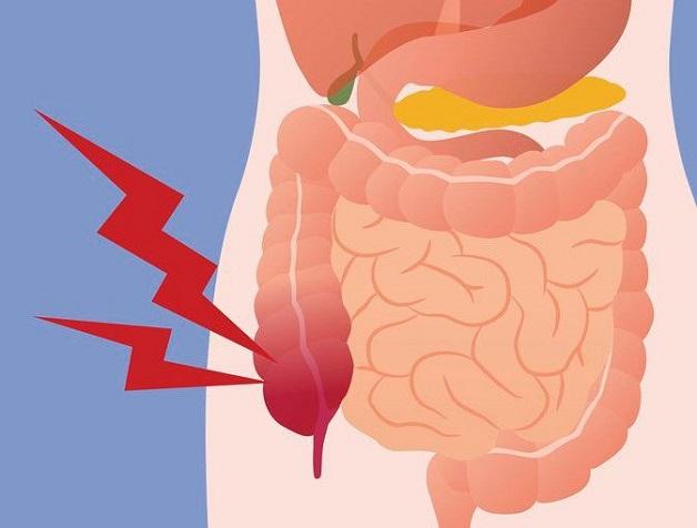 Viêm ruột thừa có nguy hiểm không là thắc mắc của rất nhiều người.