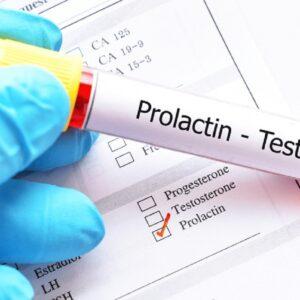 Xét nghiệm Prolactin vào ngày nào để đạt kết quả chính xác nhất?