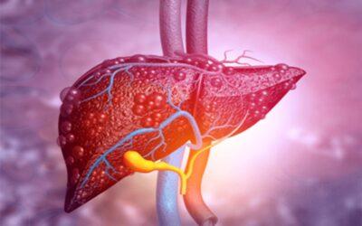 Thật dễ dàng để nhận biết những dấu hiệu của bệnh xơ gan còn bù