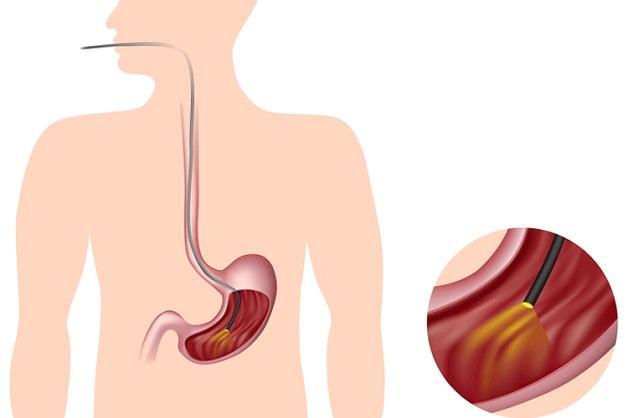 Nội soi dạ dày cho phép bác sĩ quan sát rõ ràng thực quản, dạ dày, hành tá tràng
