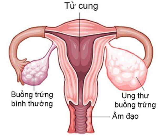Cắt buồng trứng có thai được không là vấn đề của nhiều người quan tâm, nhất là sau khi thực hiện phẫu thuật buồng trứng