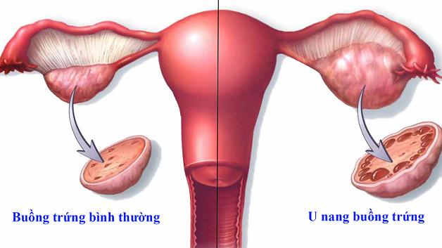 Sau khi bác sĩ thực hiện việc mổ u nang buồng trứng cho bệnh nhân thì khi ấy cơ thể còn rất yếu, chưa thể hoạt động mạnh được