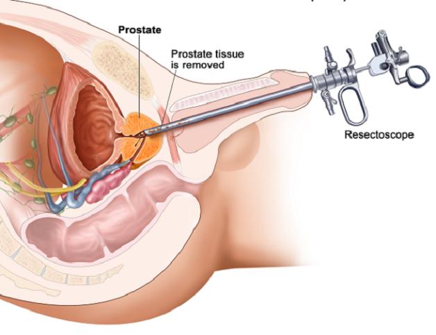 Chữa u xơ tuyến tiền liệt bằng phương pháp nội soi qua đường niệu đạo là phương pháp điều trị phổ biến