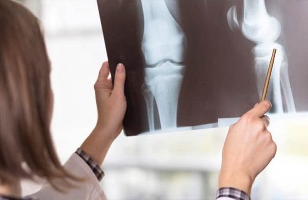 Chụp X quang liên tục - bệnh cơ xương khớp