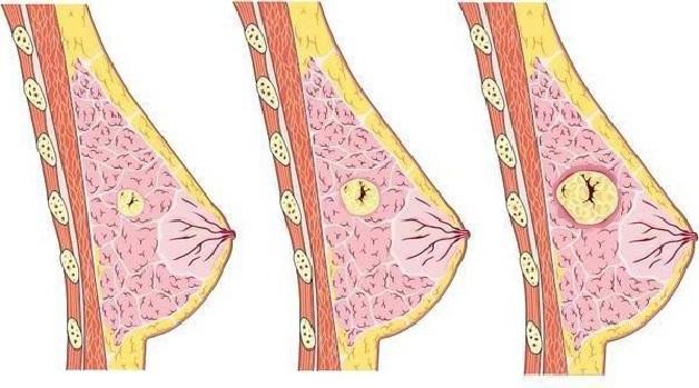 Có nhiều nguyên nhân khiến chị em bị u xơ tuyến vú