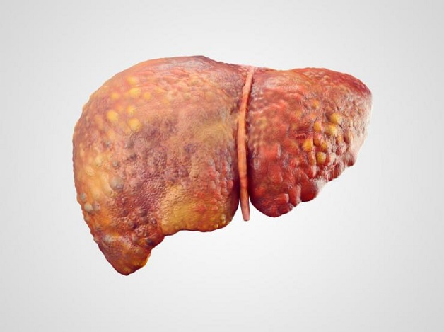 Bệnh nhân gan nhiễm mỡ nên thay đổi lối sống, chế độ ăn uống, tập luyện và giảm cân.