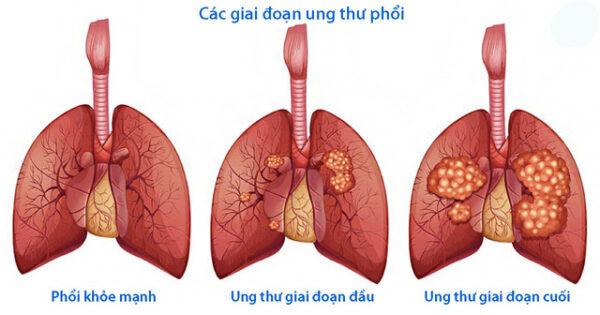Giá tầm soát ung thư phổi và những vấn đề xung quanh