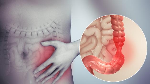 Hội chứng ruột kích thích được chẩn đoán bằng cách loại trừ các bệnh lý khác