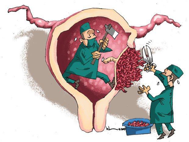 Nhau cài răng lược là một biến chứng vô cùng nghiêm trọng, xảy ra ở các mẹ bầu.