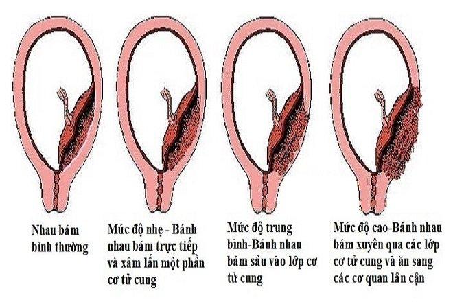 Nhau cài răng lược được chia thành 3 thể chính, dựa vào mức độ xâm lấn của bánh nhau