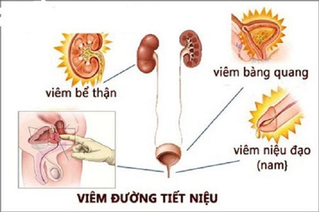 Nhiễm trùng đường tiết niệu xảy ra chủ yếu ở niệu đạo và bàng quang