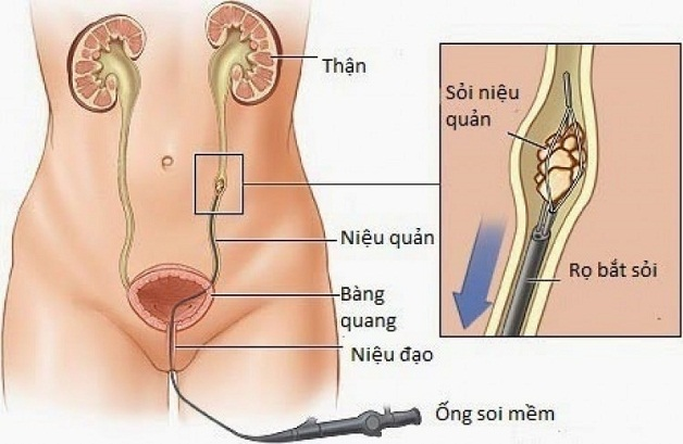 Phẫu thuật nội soi lấy sỏi bằng ống soi mềm bảo tồn tối đa chức năng thận