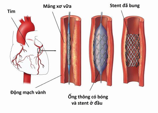 Phương pháp điều trị co thắt động mạch vành