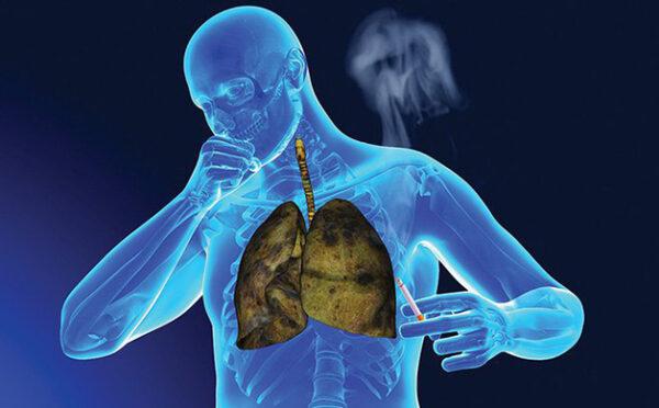 Phương pháp tầm soát ung thư phổi như thế nào?