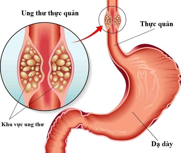 ung thư đường tiêu hóa