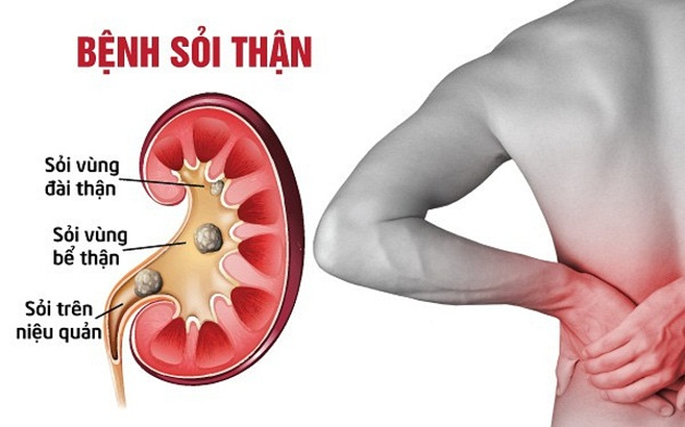 Tán sỏi qua da có đau không là thắc mắc của nhiều người bệnh khi có chỉ đinh tán sỏi