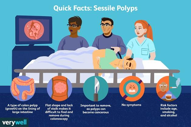 Polyp đại tràng cần được phát hiện sớm để ngăn ngừa ung thư