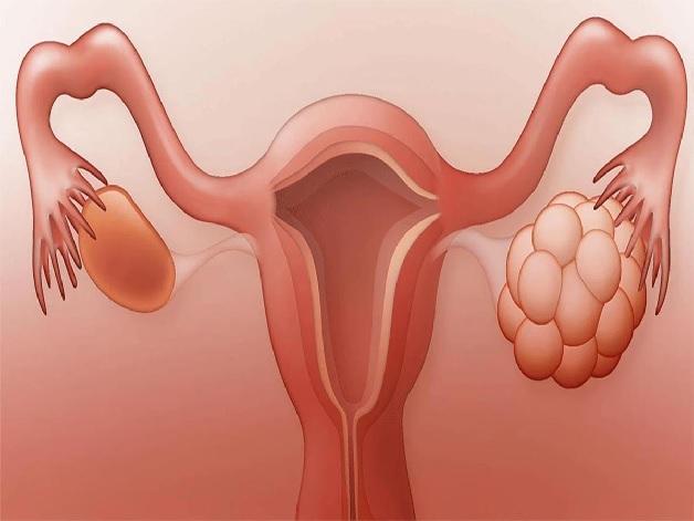 U nang buồng trứng là khối u bất thường nằm ở bên trong hoặc phía trên buồng trứng