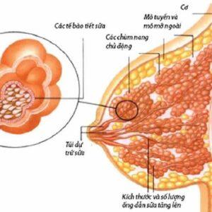 Những điều về u nang tuyến vú mà bạn cần biết rõ