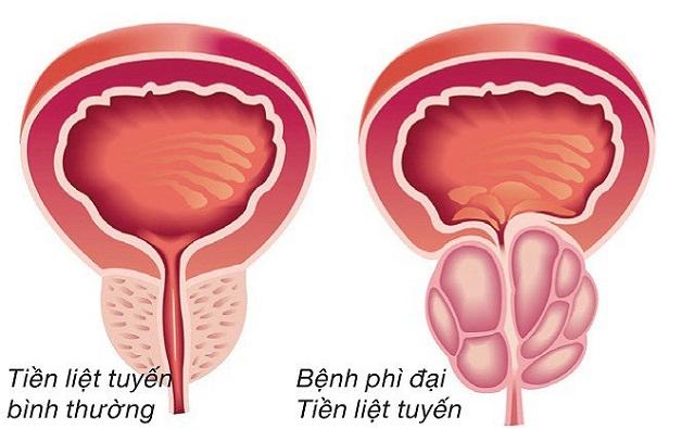 U xơ tuyến tiền liệt là hiện tượng tăng sinh bất thường về kích thước của tuyến tiền liệt