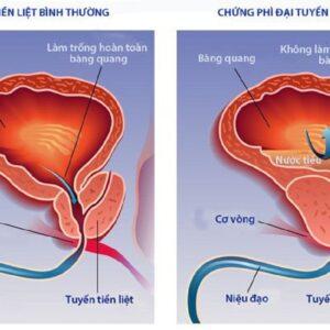U xơ tuyến tiền liệt bệnh học – Bệnh của đa số đàn ông