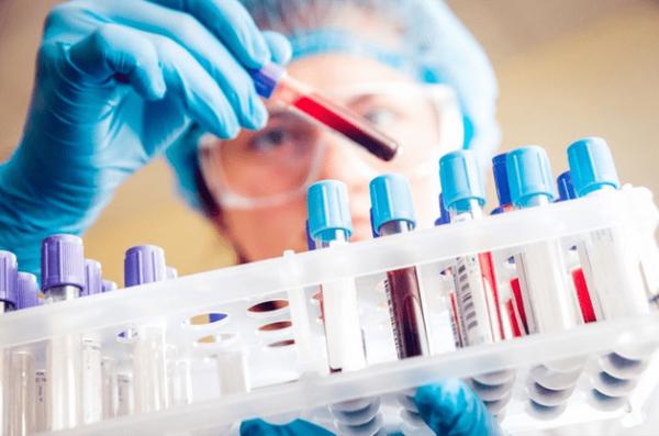 xét nghiệm máu tầm soát ung thư vòm họng